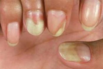 Examining Fingernails In Elderly Patients 35 Finger Nails