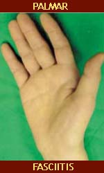 Lumpy areas on the palm can signal cancer.