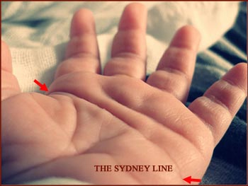 The Sydney line: a hand mark for Down's syndrome, leukemia, Alzheimer dementia, and psychological problems.