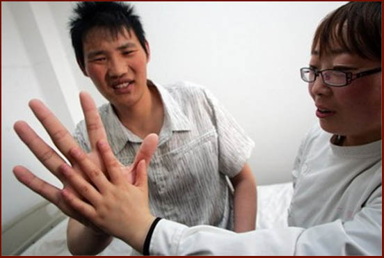 Zhao Liang has very large hands - about twice as long as the hand of his doctor!