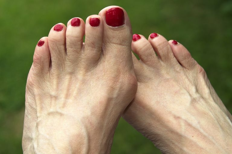 elderly woman's foot bunion and hammer toes foot ailment red toenails