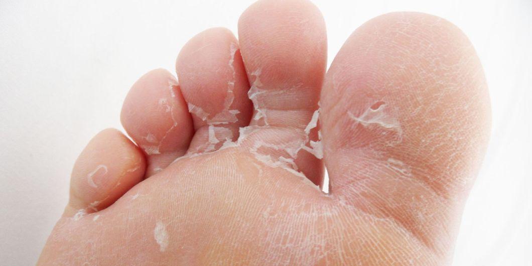 toe foot ailment dry skin peeling toe fungus