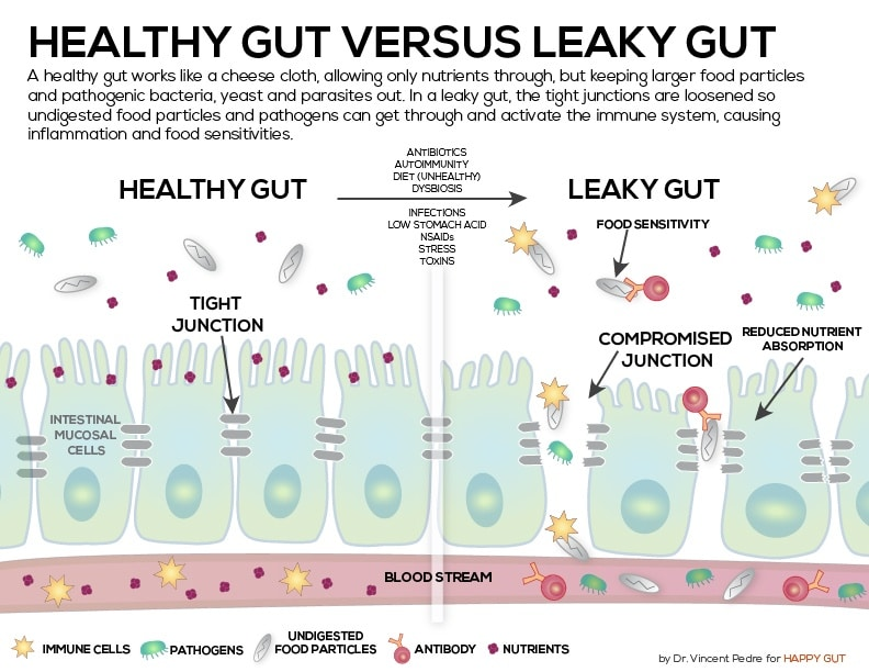 Image result for leaky gut