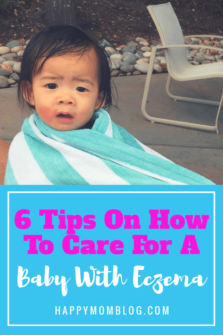 Here are my 6 tips on how to care for a baby with exzema