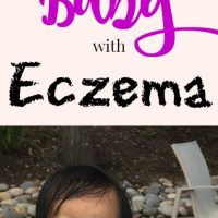 6 Tips On How To Care For A Baby With Eczema