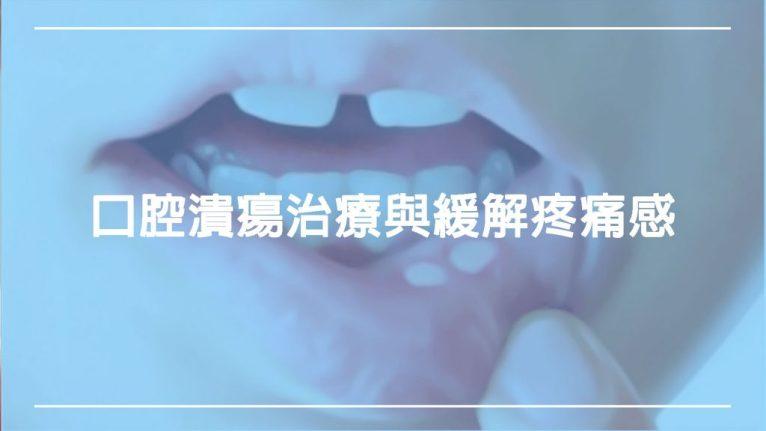 口腔潰瘍:如何治療與緩解潰瘍疼痛感