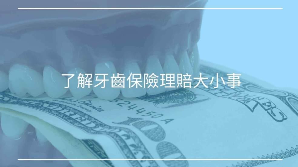 了解牙齒保險理賠大小事