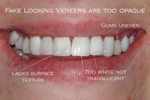 牙齒貼片後遺症
