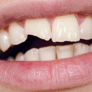 缺角的牙齒