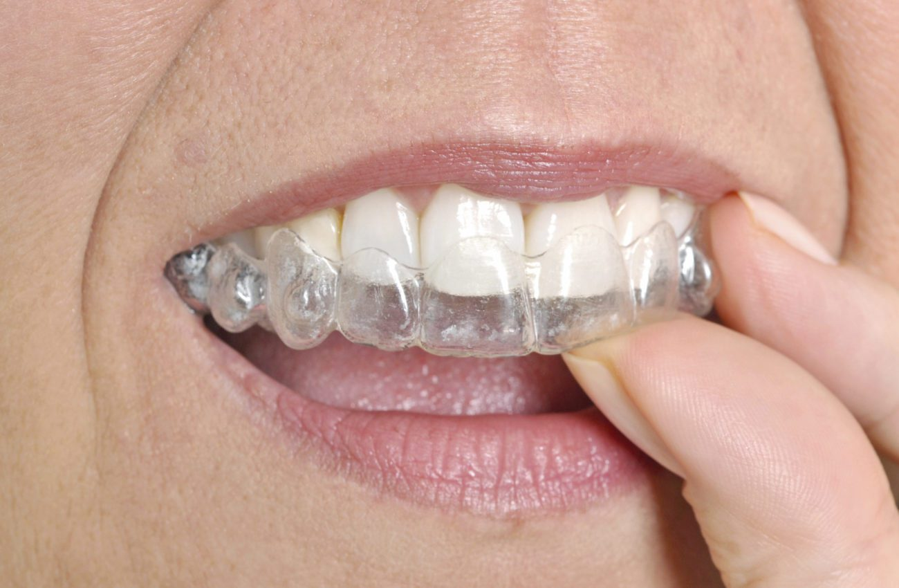 Invisalign Can Help Create Your Perfect Smile