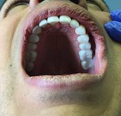 tooth crown replacement in Fallston, MD