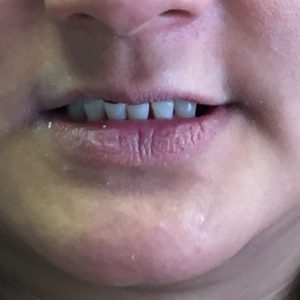 Before denture partial in Fallston MD