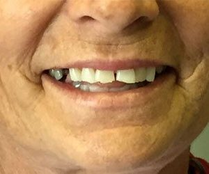 Before smile makeover in Fallston, MD