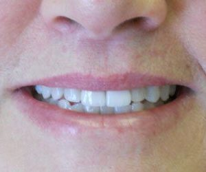 Dental veneers at Lazer and Associates Family Dentistry