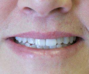 Dental veneers at Lazer and Associates Family Dentistry