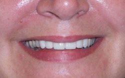 after dental veneers procedure
