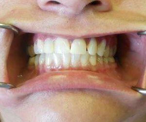 before dental veneers procedure