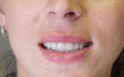 after porcelain veneers at Lazer and Associates Family Dentistry