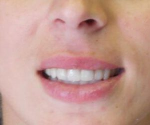 after porcelain veneers at Harford County Dentistry