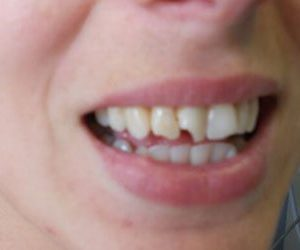 before porcelain veneers at Harford County Dentistry