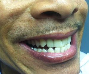 After professional teeth whitening in Fallston, MD