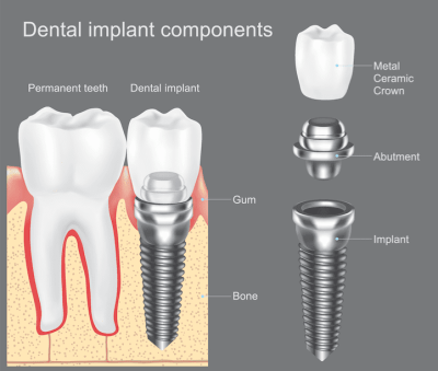 dental implants in Fallston MD