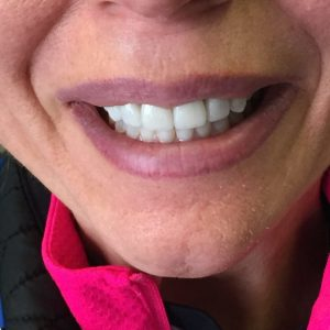After dental crowns treatment in Harford County, MD