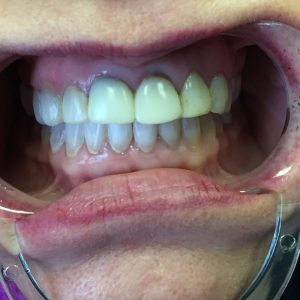 Before dental crowns treatment in Harford County, MD