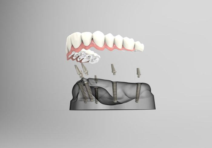Cost of Dental Implants Fallston MD
