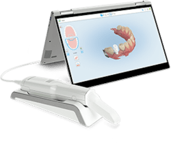 digital dental impressions harford county md