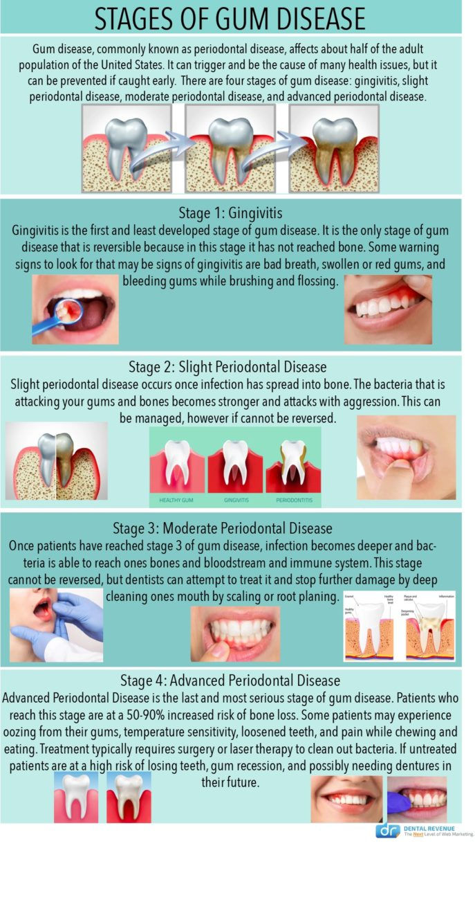 stages of gum disease infographic