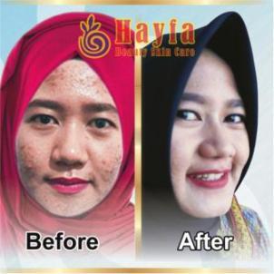 Harga Perawatan di Hayfa Semarang