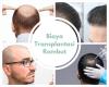 Harga dan Biaya Transplantasi Rambut terbaru