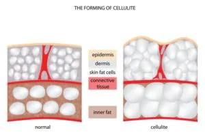 cellulite diagram-journal-harley-street-emporium