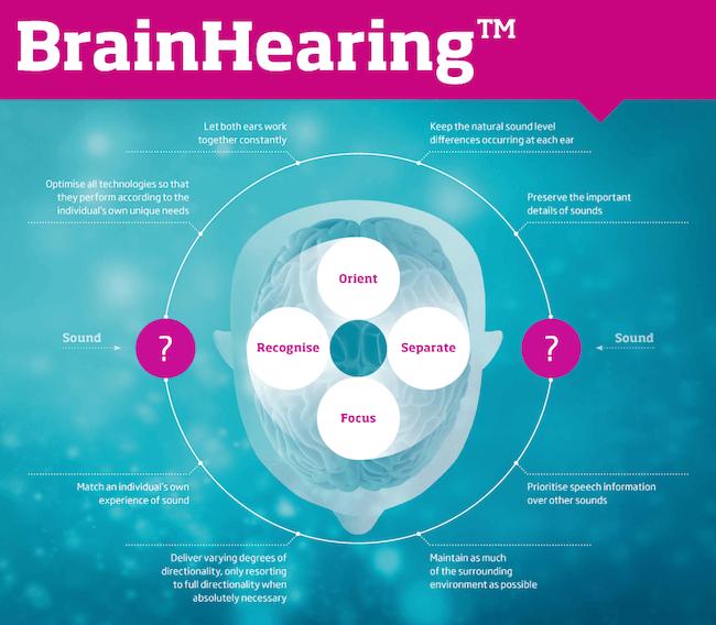 BrainHearing Diagram