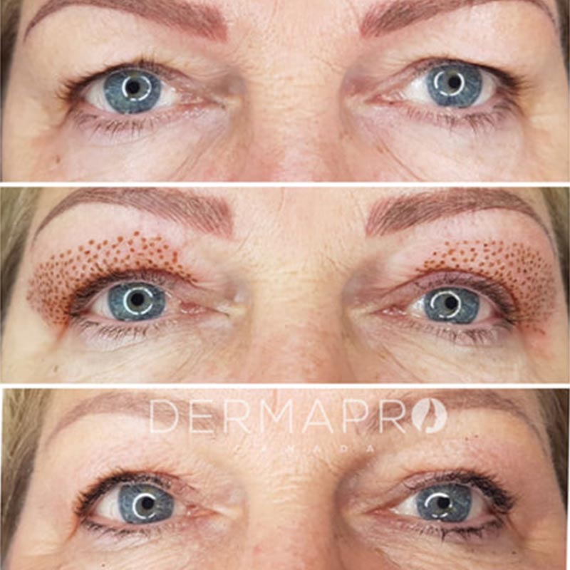 Plasma Pro • Harrogate Health & Beauty Cosmetic Clinic