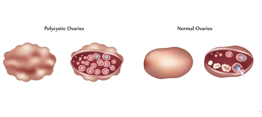 polycystic ovaries, PCOS