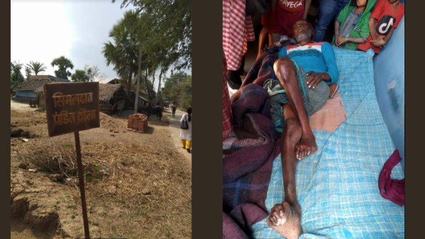 Simaldhab village affected by water with fluorosis