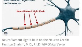 Neurofilament Light Chain on the Neuron