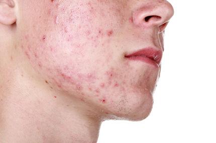akne typische symptome und ursachen
