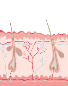 Bild von Badedermatitis - Illustriert