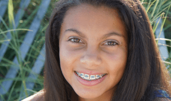 Why Your Teeth Feel Loose with Braces