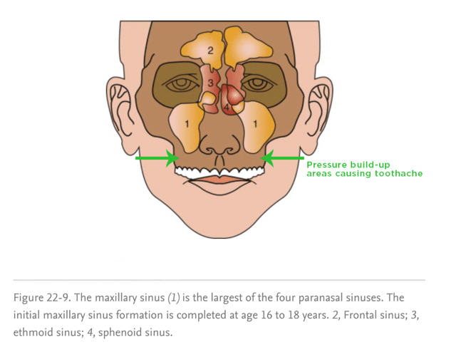 The maxillary sinus is made up of a right sinus and a left sinus. Because they sit above the back molars of the mouth, sinus pressure can cause tooth pain