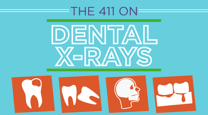 Facts About Dental X-rays [Infographic]