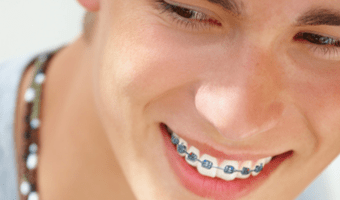 Parents and kids alike can agree on one thing – they want tips to get braces off faster. Read this article for practices to help your child cut down braces' treatment time.