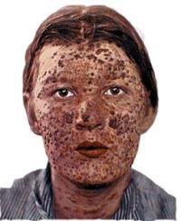 חולה נגוע באבעבועות שחורות