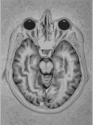 תמונת MRI של מח אנושי. מתוך ויקיפדיה