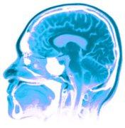 סריקת MRI של המוח. מתוך אתר מכון פרנקלין