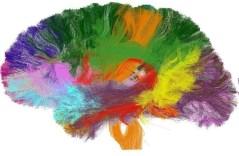 """אטלס של קישוריות מוחית של מסילות עצביות (תרומתו של חוקר CONNECT דניס לה-ביהן וציוותו). באדיבות ד""""ר יניב אסף, אוניברסיטת ת""""א"""