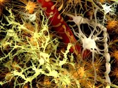 התאים העיקריים במוח: בצהוב נוירונים (תאי עצב), בכתום: אסטרוציטים, אפור: אויליגודנדרוצידים, בלבן, מיקרו גליה או תאי המוח. איור: shutterstock